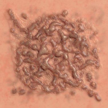 Keliod Burn Scar 1