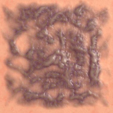Old Burn Scar 2