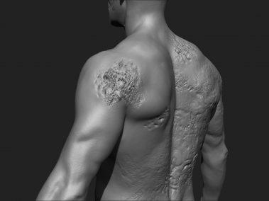 Skin Rot 2