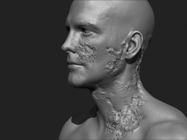 Skin Rot 3