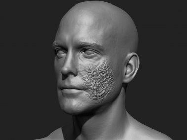 Skin Rot 5
